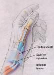 dequervains-tendinitis