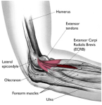 tennis-elbow-21