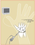 wrist-arthroscopy