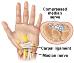 cts-carpal-tunnel