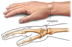 dorsal-ganglion-cyst-of-the-wrist2