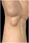 palmar-ganglion-cyst-of-the-wrist